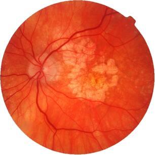 Возрастная макулярная дегенерация сетчатки глаза