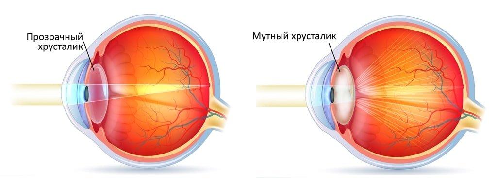 Диагностика катаракты – как определить катаракту?